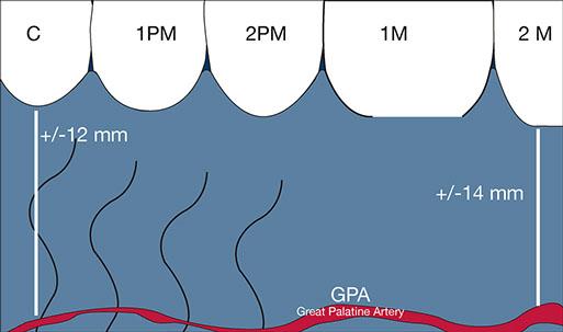 gpa-01