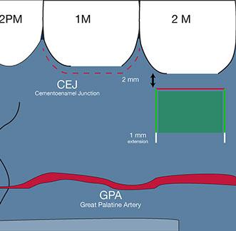 gpa posterior palate trap door-01-1
