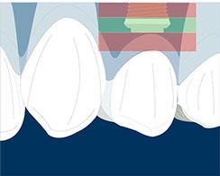 implante pieza 14 postextraccion- limite aoico- coronal (1)