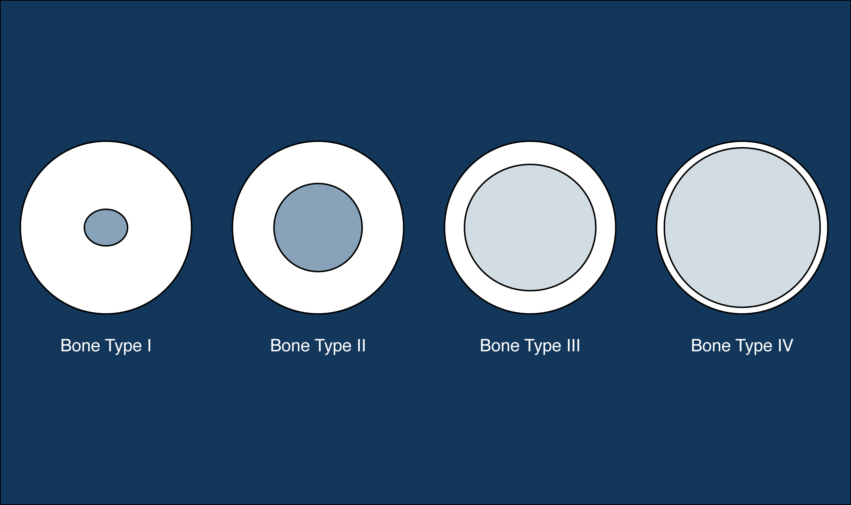 bone quality classification. Lekholm and Zarb