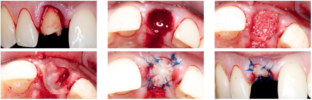 alveolar ridge preservation