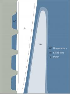 Socket shield histology illustration