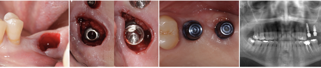 Immediate implant (Alvim, Neodent®) with the definitive Micro-abutment placed the same day of the surgery.