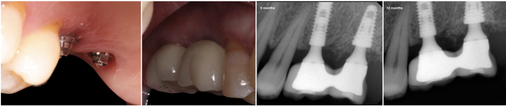 Follow up after 12 months. Peri-implant soft and hard tissue were well preserved.
