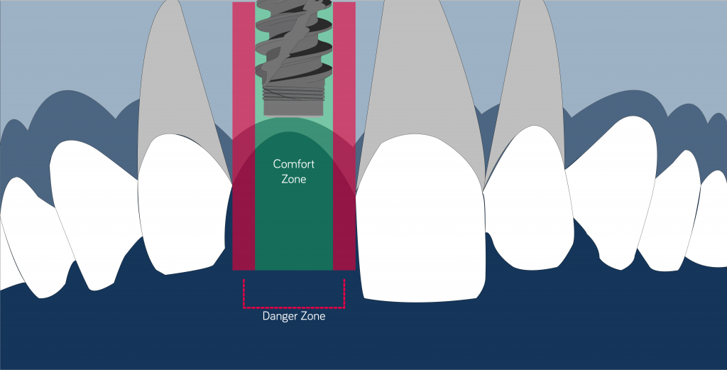 confort zone mesiodistal position implant 1.5 mm